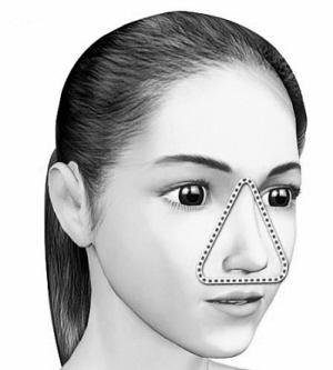"""人的面部有一个""""危险三角区"""""""