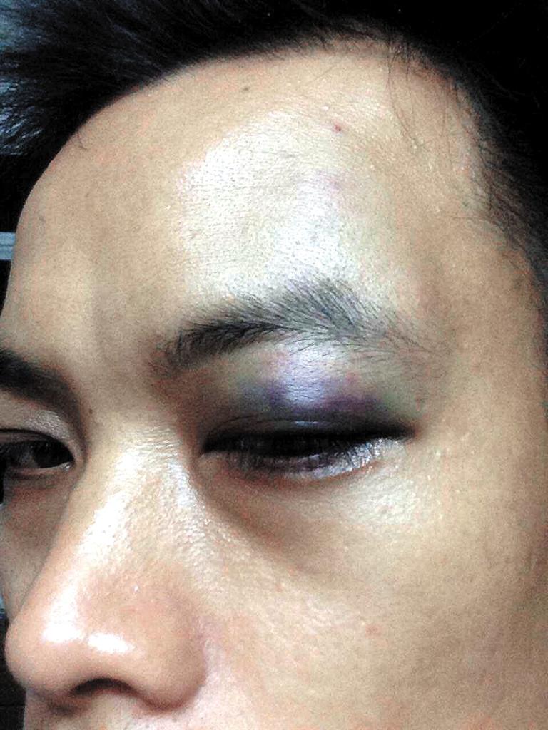 部惊现淤青_孙先生左眼部肿胀淤青